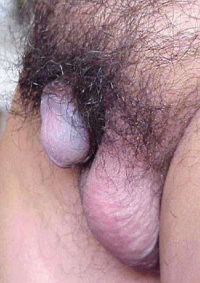 bilder-von-peniserkrankungen-nackt-nangi-maedchen-foto-bilder